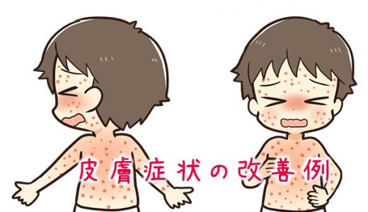 Maxminiでの皮膚症状の改善例